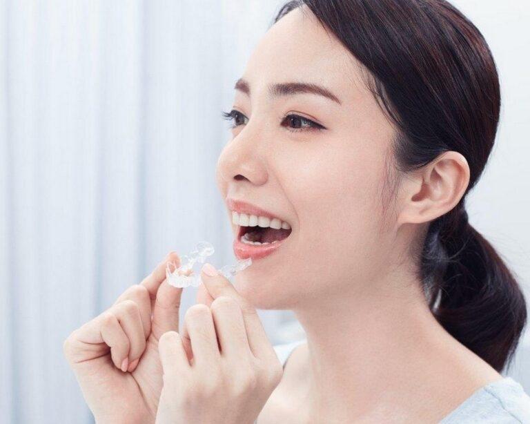 台中隱形牙套矯正推薦 寬禾口腔顎面外科