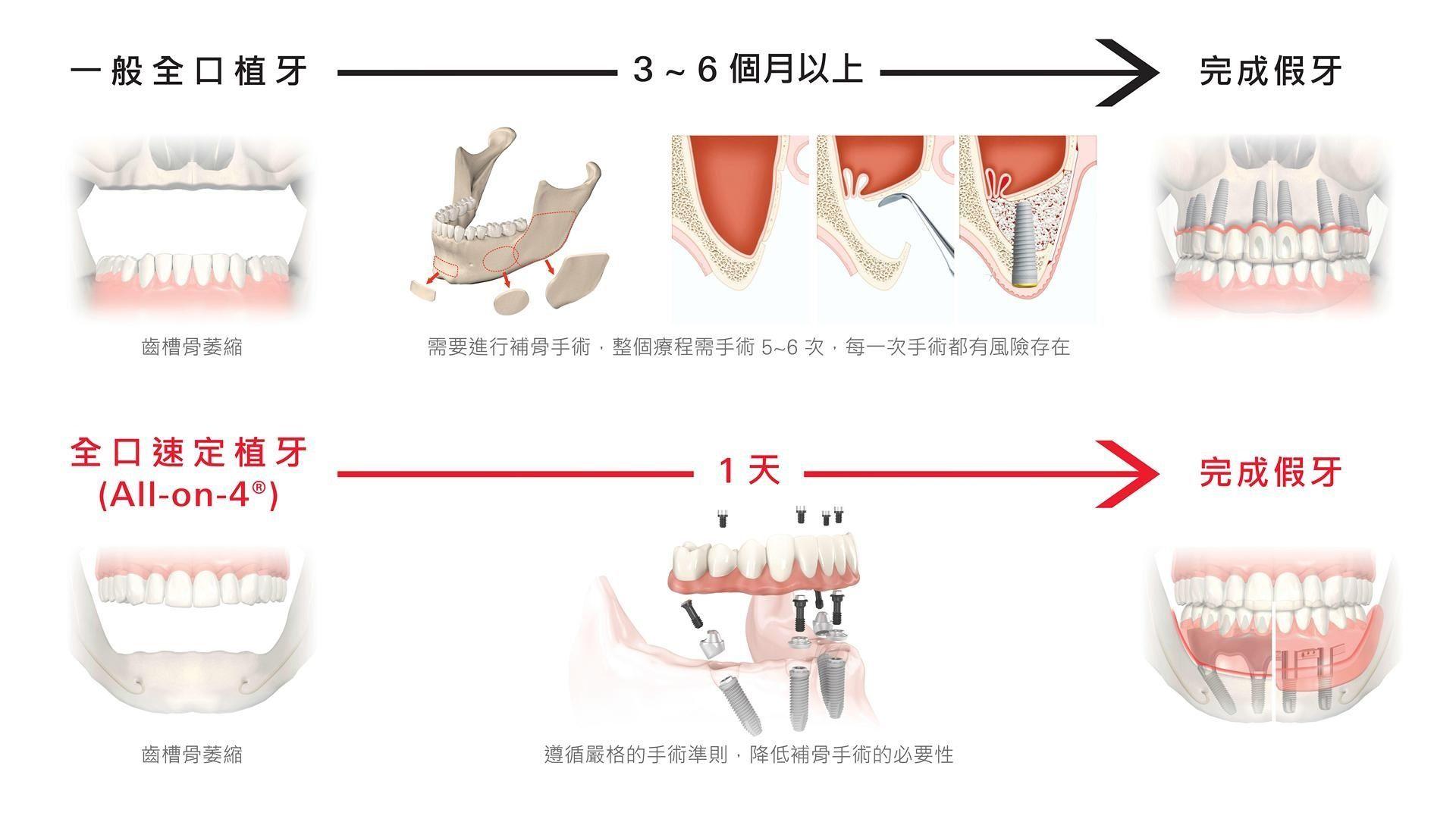 台中all on 4 全口重建植牙手術
