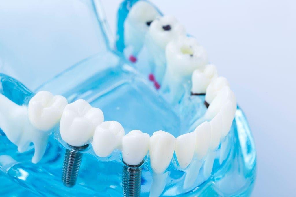 台中植牙推薦 寬禾口腔顎面外科