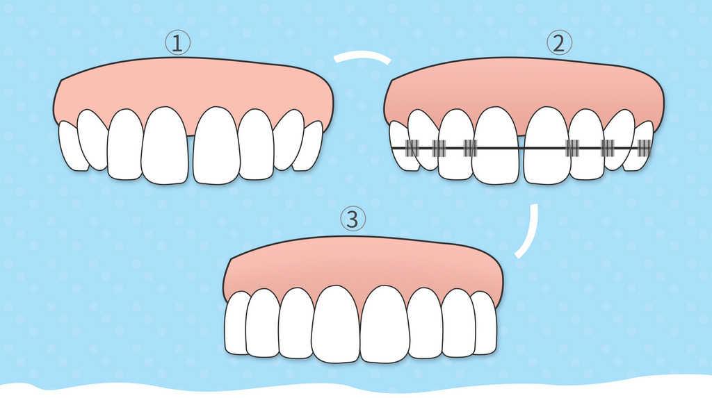 台中牙齒矯正推薦 寬禾口腔顎面外科
