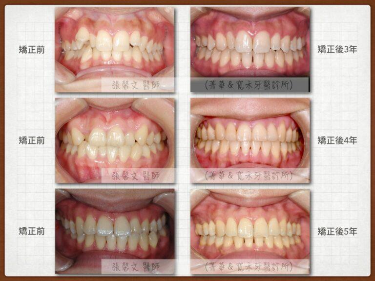 orthodontic-retainer